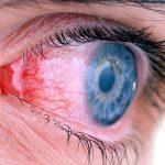 probleme me syte