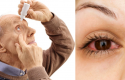 Sëmundjet e syrit! Mos qëndroni të verbër ndaj këtyre këshillave!