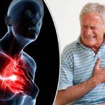 angina 1