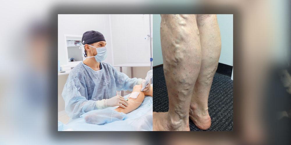 tratamentul varicozei nizhny tagil