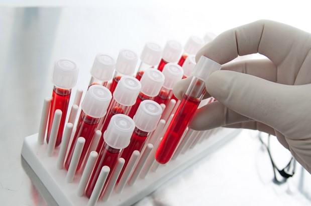 test i hekurit ne gjak-konica.al